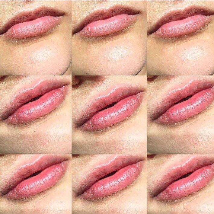 Top row before lip filler. We used 1ml Restylane ����Exclusive Semi Permanent Makeup & Aesthetics service offered privately 24/7 to you at your boat, villa or apartment in the Côte d'Azur, from St Tropez ���� to Monaco ���� +44 7823 322420 +44 7737 508747  #rossandrhodesinternational #rossandrhodessemipermanentmakeup #london #monaco #montecarlo #nice #cannes #sttropez #paris #ibiza #barcelona #madrid #marbella #eyebrows #cotedazur #semipermanentmakeupmonaco #lemetropoleshoppingcenter…