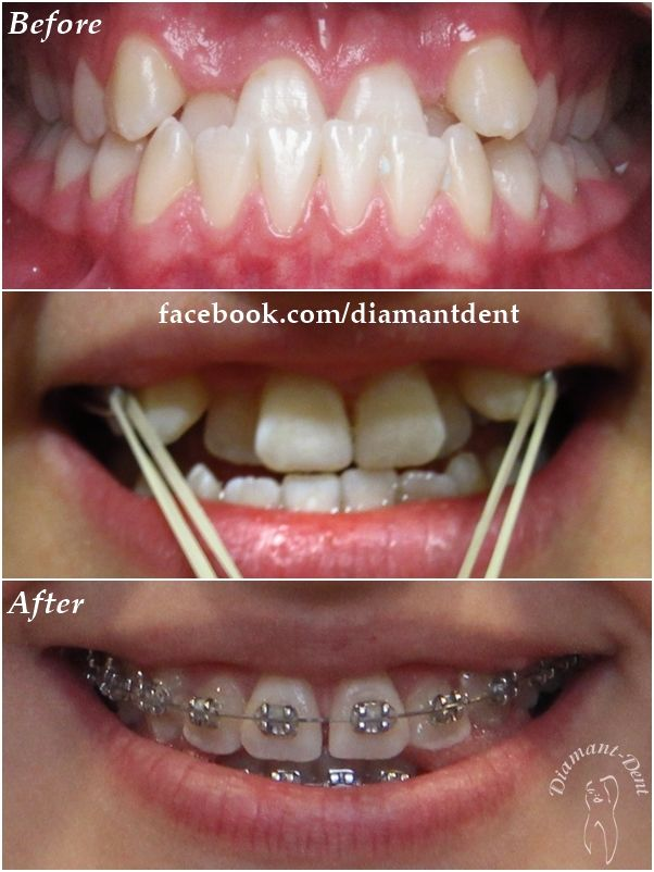 New Smile, new life :) Before After Photo! Have a Bright smile! Orthodontics,  Diamant Dent