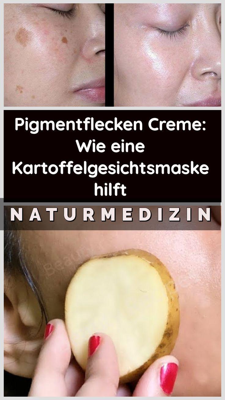Pigmentflecken Creme: Wie eine Kartoffelgesichtsmaske hilft
