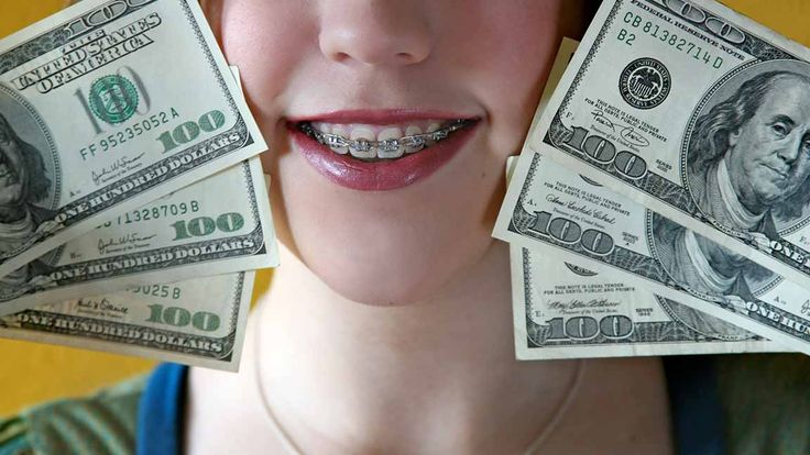 Cost of traditional braces braces cost dental braces