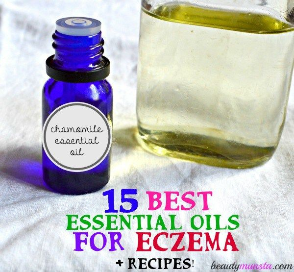 Here's how you can treat eczema with 15 of the best essential oils. Recipes included!