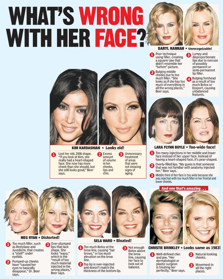 Bad botox before and after 7 day