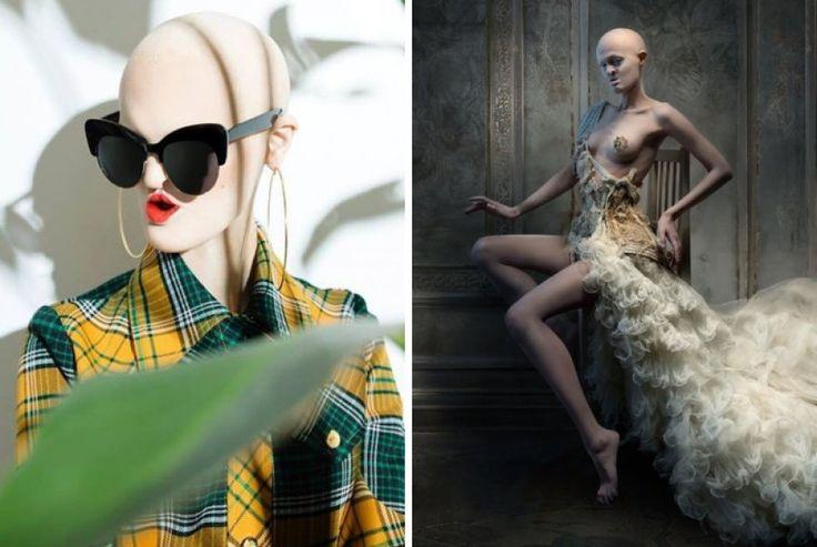 Una joven con un raro trastorno genético que rompe estereotipos en la moda