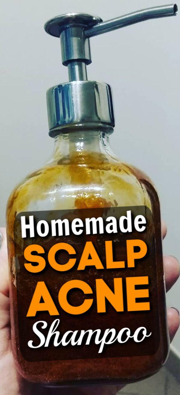 Scalp Acne Shampoo – Best Shampoo To Get Rid Of Pimple On Scalp