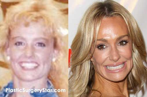 Taylor Armstrong has recently had a lot of plastic surgery on her face.  The before and after pictures show an extreme difference.