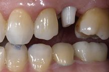 What to do When Your Dental Crown Falls Off.