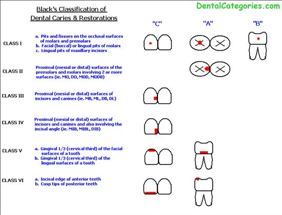 Definition G. V. Black Classification of Dental Caries. Greene Vardiman Black (1836–1915), commonly known as G.V. Black, is known as the father of modern dentistry in the US. #GVBlack #Dentistry #GVBlackClassificationofDentalCaries