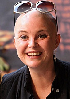 TV presenter Gail Porter. Her hair loss was almost overnight back in 2005.