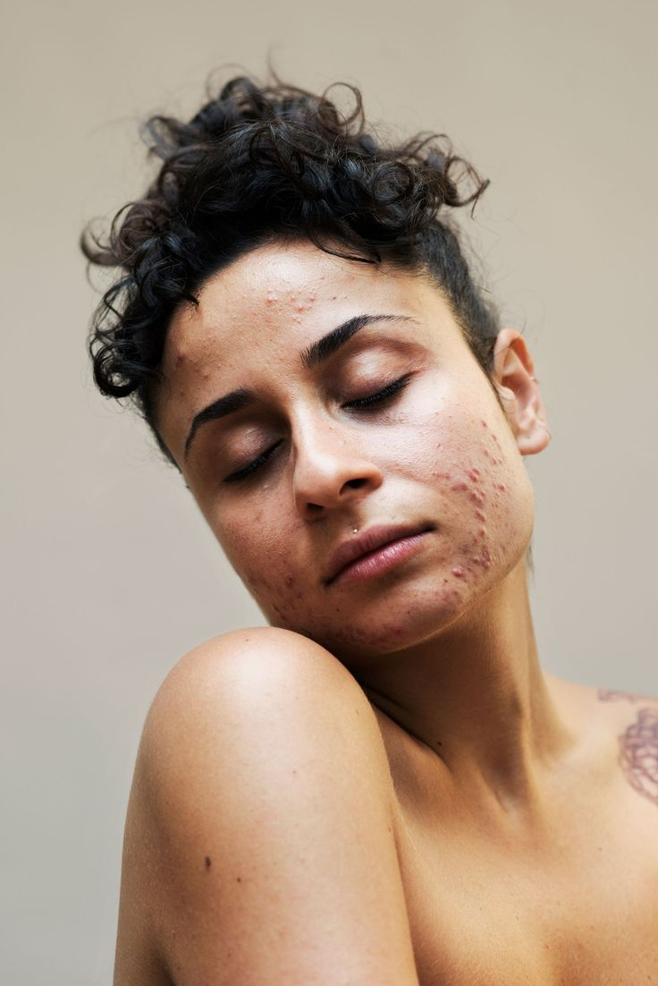 New skin photography human body freckles ideas Human Photography, Portrait Photography, Beauty Photography, Body Positivity Photography, Overnight Face Mask, Pimples Overnight, Raw Beauty, Beauty Skin, New Skin