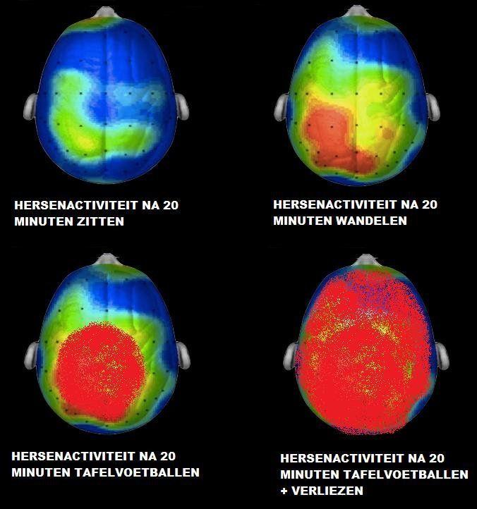 Afbeeldingsresultaat voor hersenactiviteiten wandelen en zitten