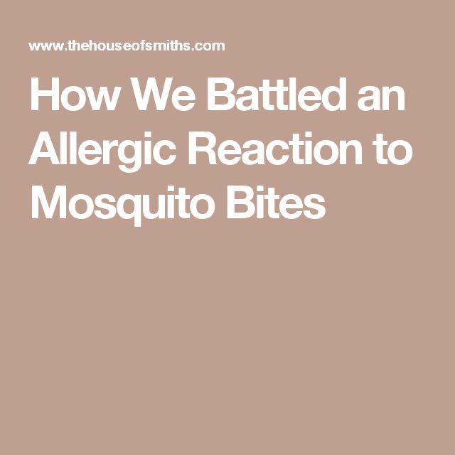 25+ beste ideeën over allergic to mosquito bites op pinterest, Skeleton
