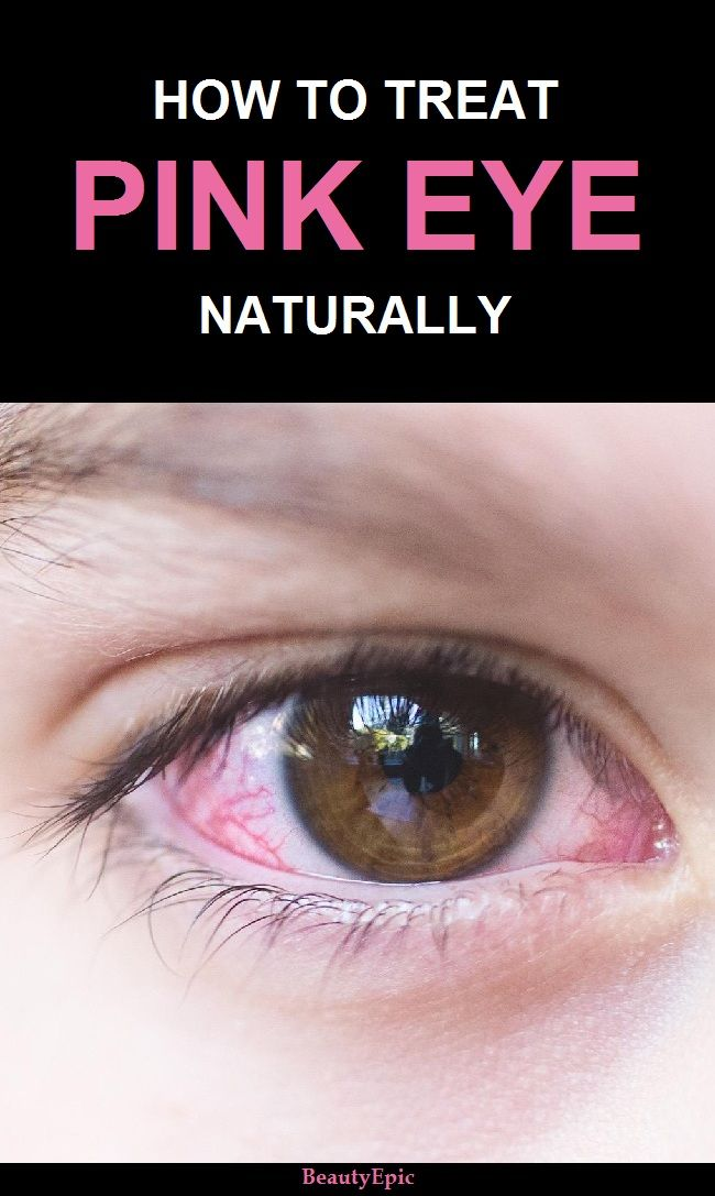 Top 9 Effective Home Remedies To Treat Pink Eye Naturally