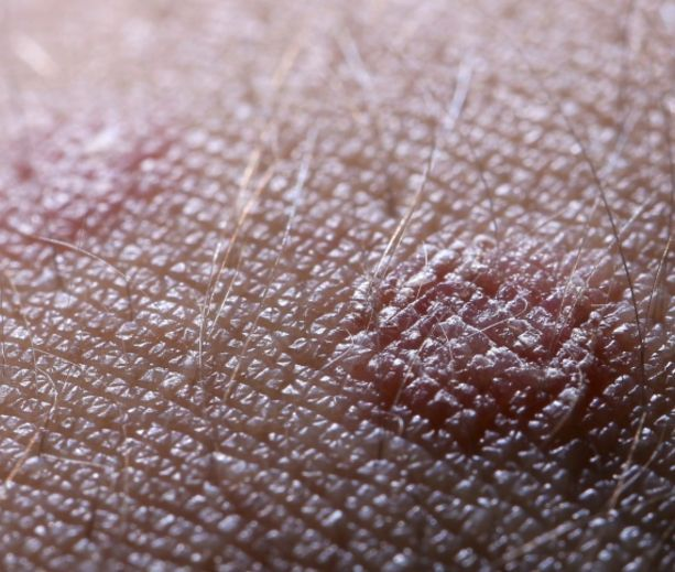 diabetic skin conditions  1