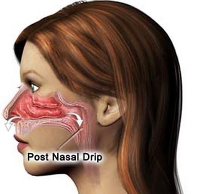 Post Nasal Drip Clearing Throat 78