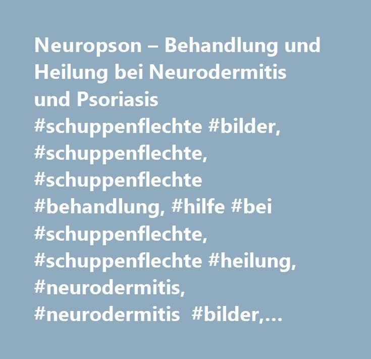 Neuropson – Behandlung und Heilung bei Neurodermitis und Psoriasis #schuppenflechte #bilder, #schuppenflechte, #schuppenflechte #behandlung, #hilfe #bei #schuppenflechte, #schuppenflechte #heilung, #neurodermitis, #neurodermitis #bilder, #psoriasis #behandlung, #psoriasis, #psoriaris #therapie, #neuropson, #ekzem, #neuropson #hilfe, #neuropson #salbe, #thailпїѕndischen #krпїѕutersalbe…