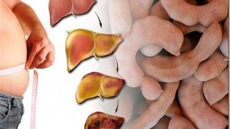 Cura Por Siempre El HÍGADO GRASO Con Un Simple Pero Muy Poderoso Ingrediente  http://ift.tt/2hxUeDS  La fruta que te ayudará a curar el Hígado Graso y otros padecimientos hepáticos ALUCINANTE! El hígado graso suele ser uno de los padecimientos hepáticos más complicados y difíciles de tratar. Ahora bien esto no significa que sea imposible combatir y eliminar la enfermedad. De hecho existen una serie de tratamientos caseros y naturales que te ayudarán a curar el hígado graso de la manera más…
