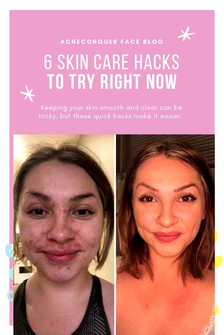 6 Steps To Cleaner Skin Lifevitality Clean Skin Acne Pimple Free Skin Acne