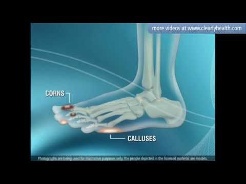 Diabetes: Foot care.