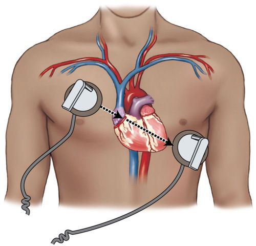 Placement of defibrillator paddles on the chest