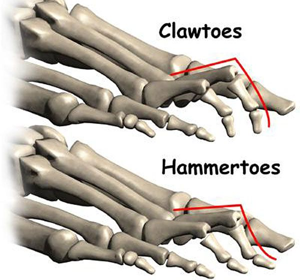 Diseases Physical Ailments: 65 Best Images About Charcot-Marie-Tooth Disease (CMT) On