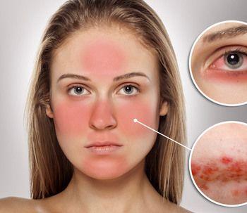 Tratamientos Para Rosacea En La Cara