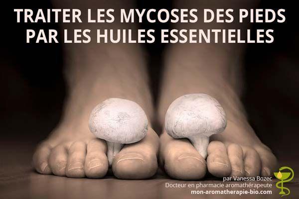 Notre pharmacienne vous explique comment soigner une mycose de l'ongle du pied ou pied d'athlète efficacement et facilement grâce aux huiles essentielles.