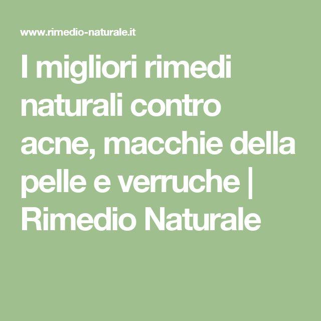 I migliori rimedi naturali contro acne, macchie della pelle e verruche | Rimedio Naturale