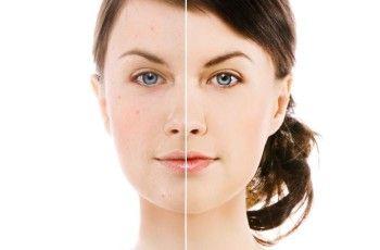 Acne – Tratamentos naturais   http://saudenocorpo.com/acne-tratamentos-naturais/
