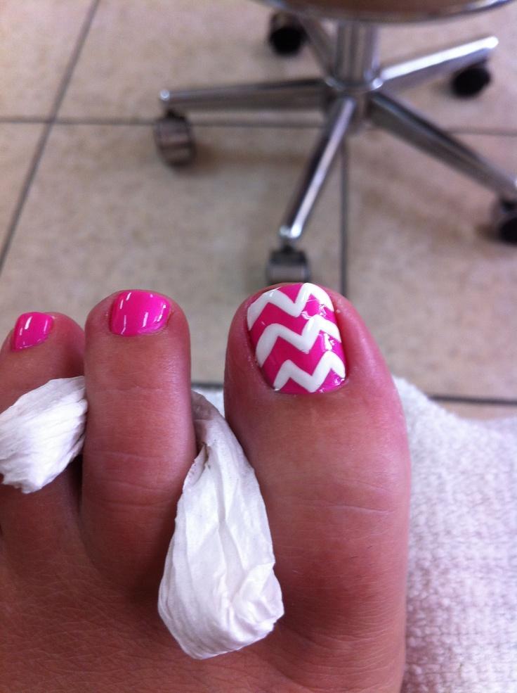 My chevron toes! Love it!