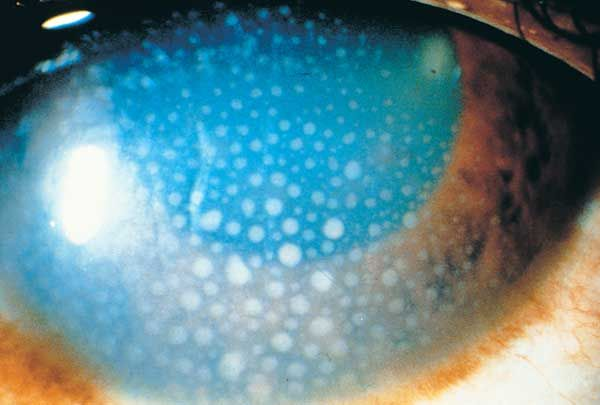 Choroidal neovascularization (CNV) and cystoid macular edema (CME) are well-recognized complications of inflammatory eye disease and importa...