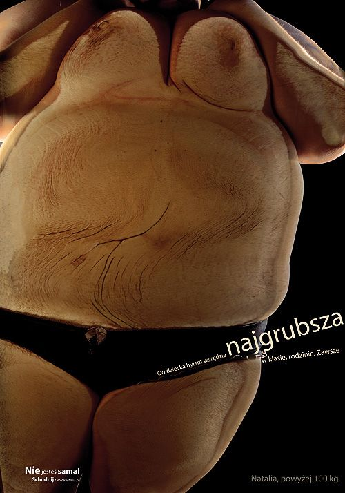 A social campaign against obesity.
