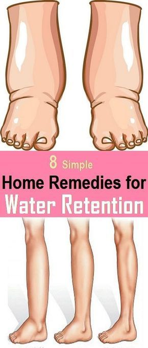 Dealing naturally with water retention, edema, swelling.