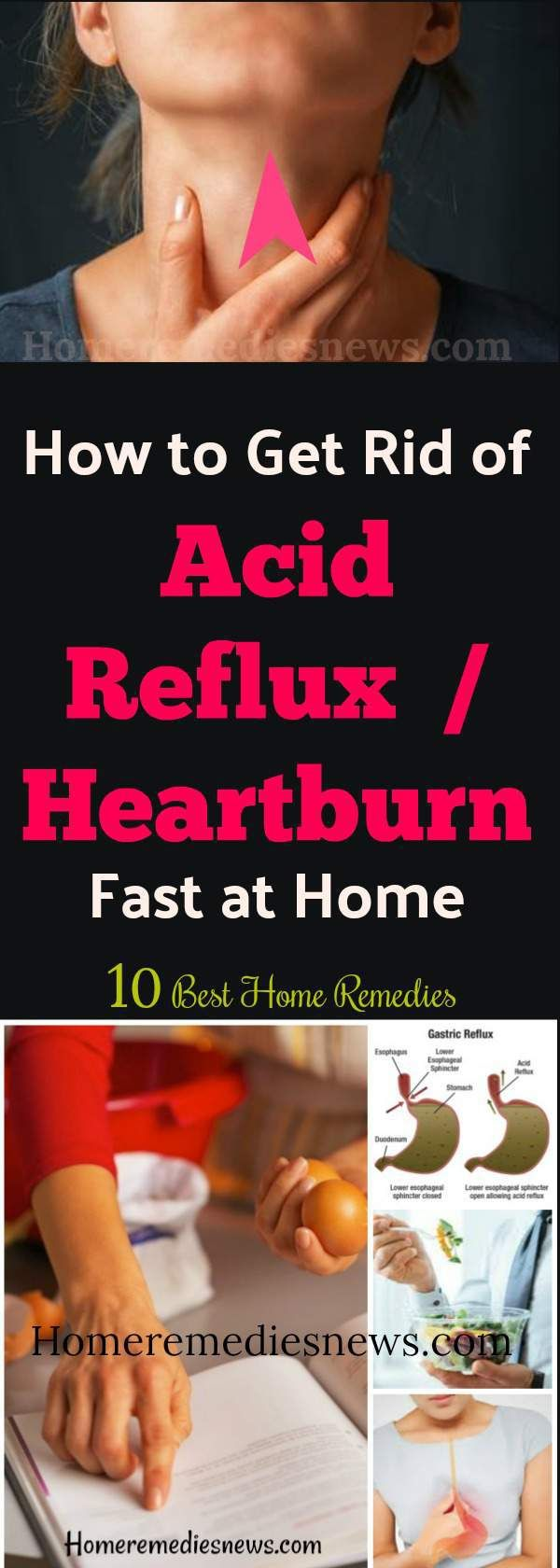 How to get rid of acid reflux naturally at Home – What is Acid Reflux / Heartburn? Acid Reflux is also known as gastroesophageal reflux disease (GERD).In this condition, the acid in the belly moves into the esophagus. This occurs when the valve that partitioned the stomach from the esophagus is malfunctioning. And one begins to feel burning sensation in the throat and chest.