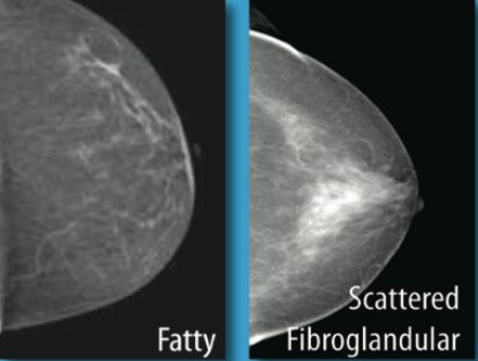 What does Scattered Fibroglandular Densities Mean? Breasts are made out of both fatty tissue and fibro-glandular tissue (see image). The level of thickness is controlled by the mammogram. The more fibro-glandular tissue, the denser the breast. Fatty tissue is fundamentally dark on the mammogram and fibro-glandular tissue is white. Breasts are isolated into 4 classificationsMore
