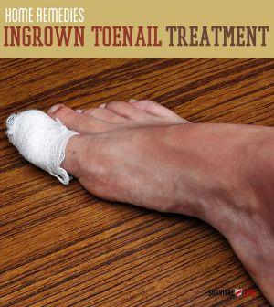 Ingrown Toenail Treatment | Home Remedies | Survival Life - Survival Life | Preppers | Survival Gear | Blog