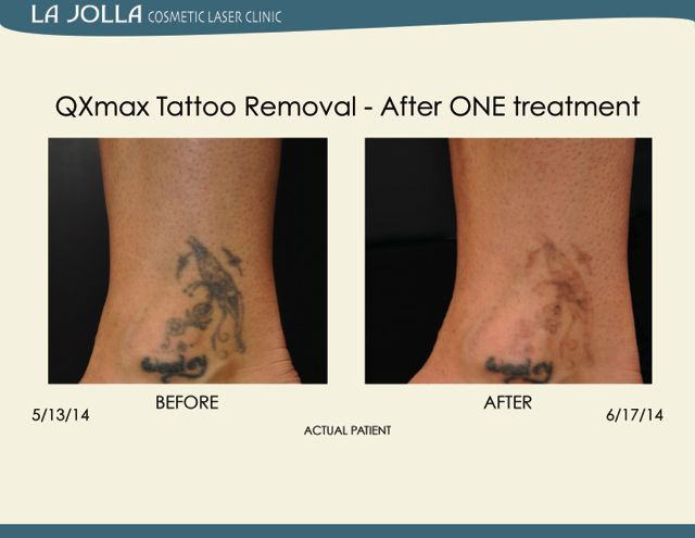 Patient Treated At La Jolla Cosmetic Laser Clinic With Qxmax Tattoo Removal Laser