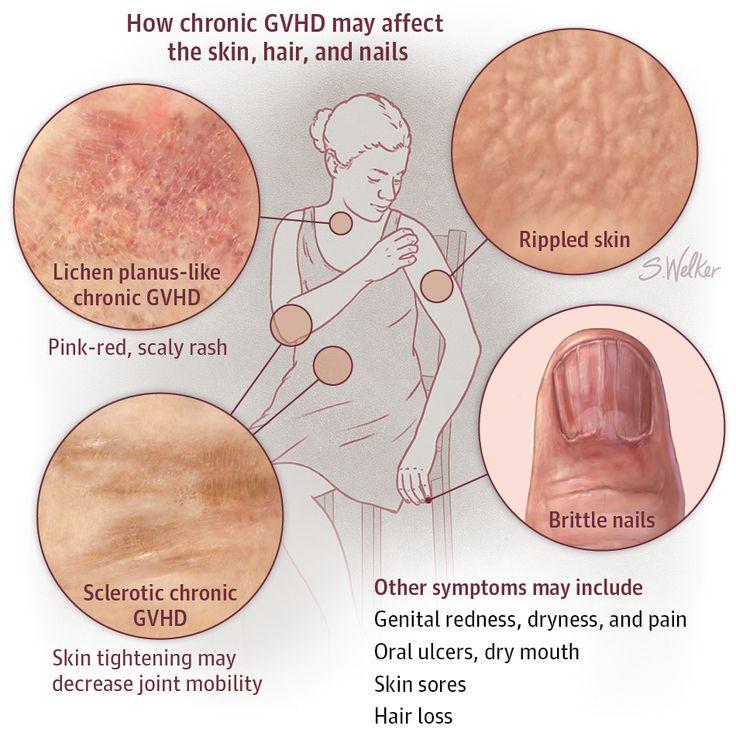 Graft-vs-Host Disease. JAMA Dermatol. 2016;152(3):356. doi:10.1001/jamadermatol.2015.5659.