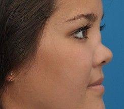 Right Diagnosis  Congenital Syphilis Saddle Nose