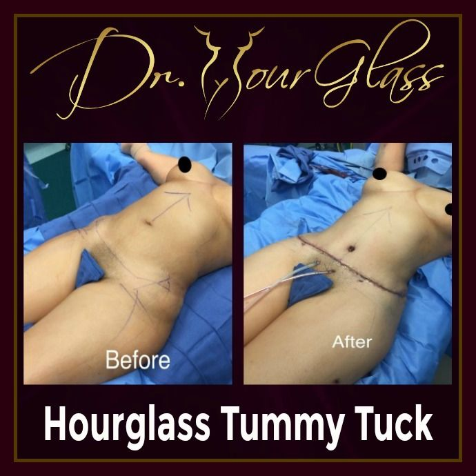 Do you know why a lot of women preferred Hourglass Tummy Tuck over the traditional tummy tuck procedure? Well, notice that this procedure will provide you not only a fit abdomen but also an hourglass shape.