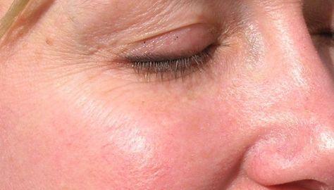 En el artículo de hoy, te muestro un pequeño tutorial para cubrir las zonas enrojecidas o con rosácea de tu rostro por medio del maquillaje. LEER MÁS.