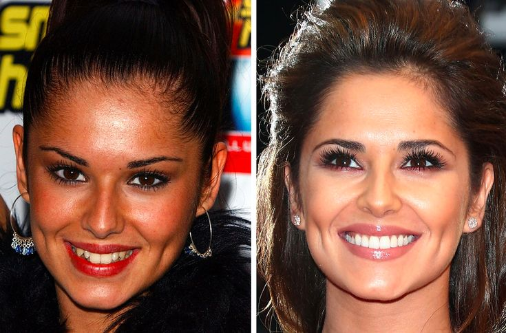 33 Before And After Photos That Prove Good Teeth Can Change Your Entire Face