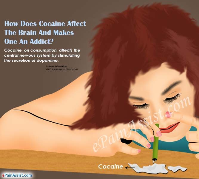 Cocaine Addiction: Signs, Symptoms, Treatment, Health Effects of Cocaine & its Duration #CocaineAddictionRehabilitation #Cocaine #AddictionAndRehab #brain #drug #health #AddictionRecovery #AlcoholAddiction  #drugs #cocaineabuse #alcohol #ePainAssist Read: http://www.epainassist.com/addiction-and-rehab/cocaine-addiction