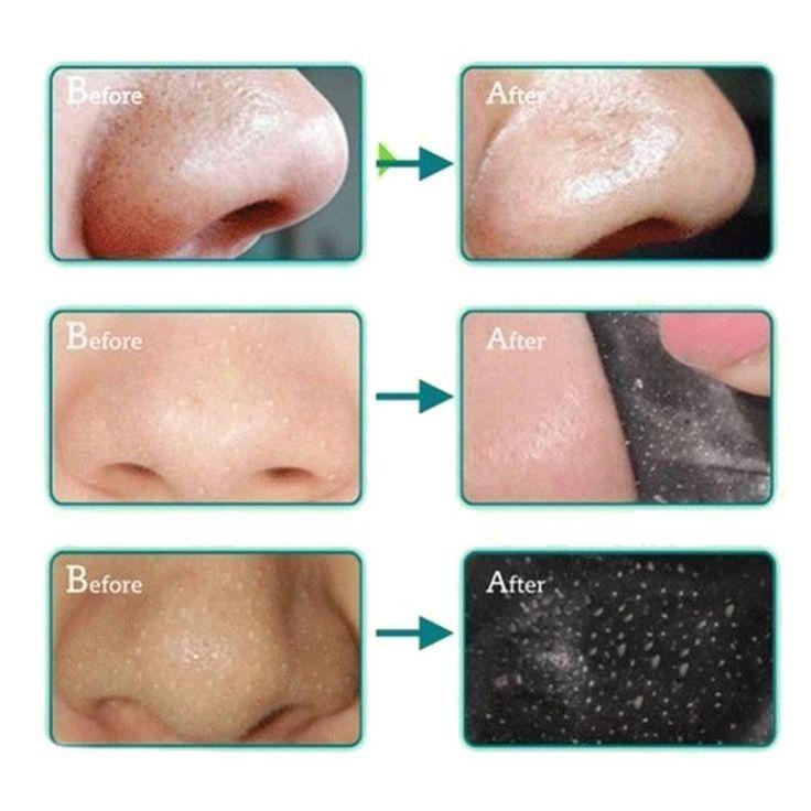 how-to-clean-facial-pores