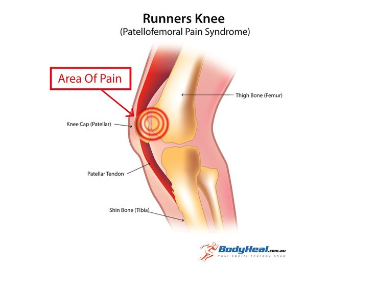 A graphic showing what happens with runners knee injury. Also known as Patellofemoral Pain Syndrome.   It's a very common knee injury causing pain behind the knee cap. Read the full article here http://www.bodyheal.com.au/blog/what-is-runners-knee-patellofemoral-pain-syndrome-symptoms-causes-treatment-options
