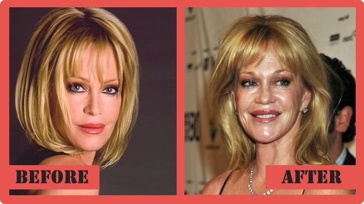 Melanie Griffith Plastic Surgery Before And After Melanie Griffith Plastic Surgery #MelanieGriffithPlasticSurgery #MelanieGriffith #celebritypost