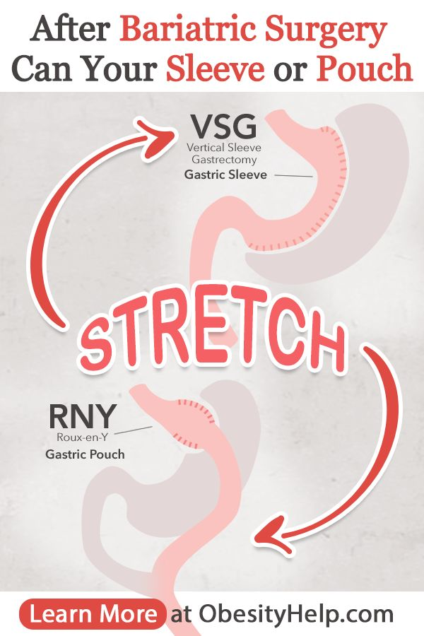 Can Your Stomach Stretch After Bariatric Surgery?