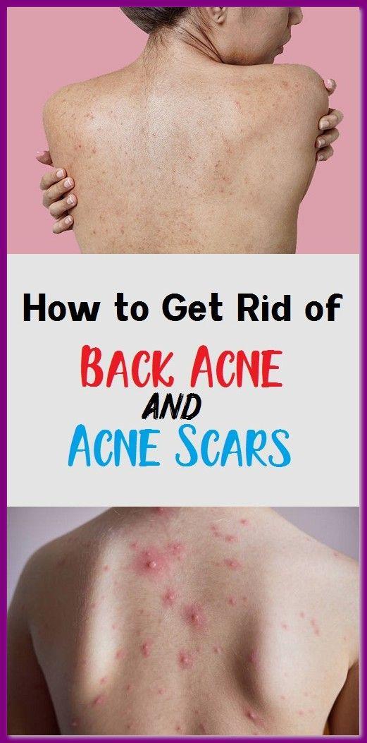 a43cc7f3f2381bfb369d52018b24ae85 - How To Get Rid Of Pimple Marks On Back