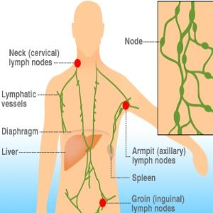 Hodgkin S Lymphoma Natural Healing
