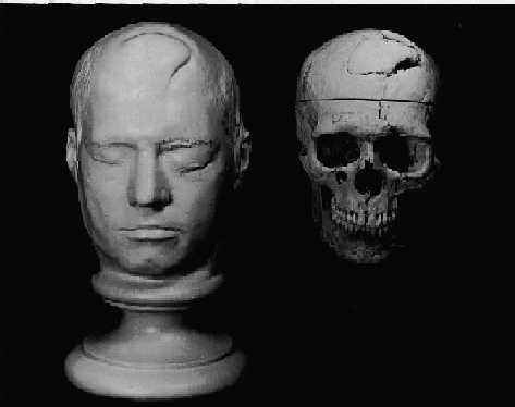 phineas gage before the accident. novel ideas: phineas gage death mask and during rail road construction accident, a tampering iron of lbs went through his left cheek bone \u0026 out the top before accident j