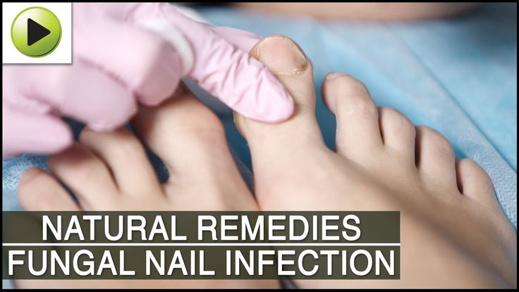 Home Remedies for Fungal Nail Infection - http://thetreatmentherbs.com/home-remedies-for-fungal-nail-infection/